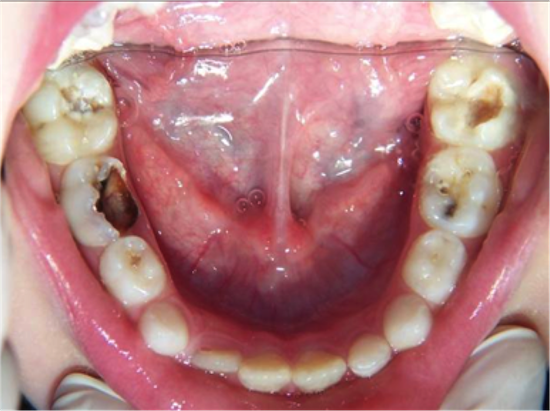 Caries oclusales. El Blog de Don Iris